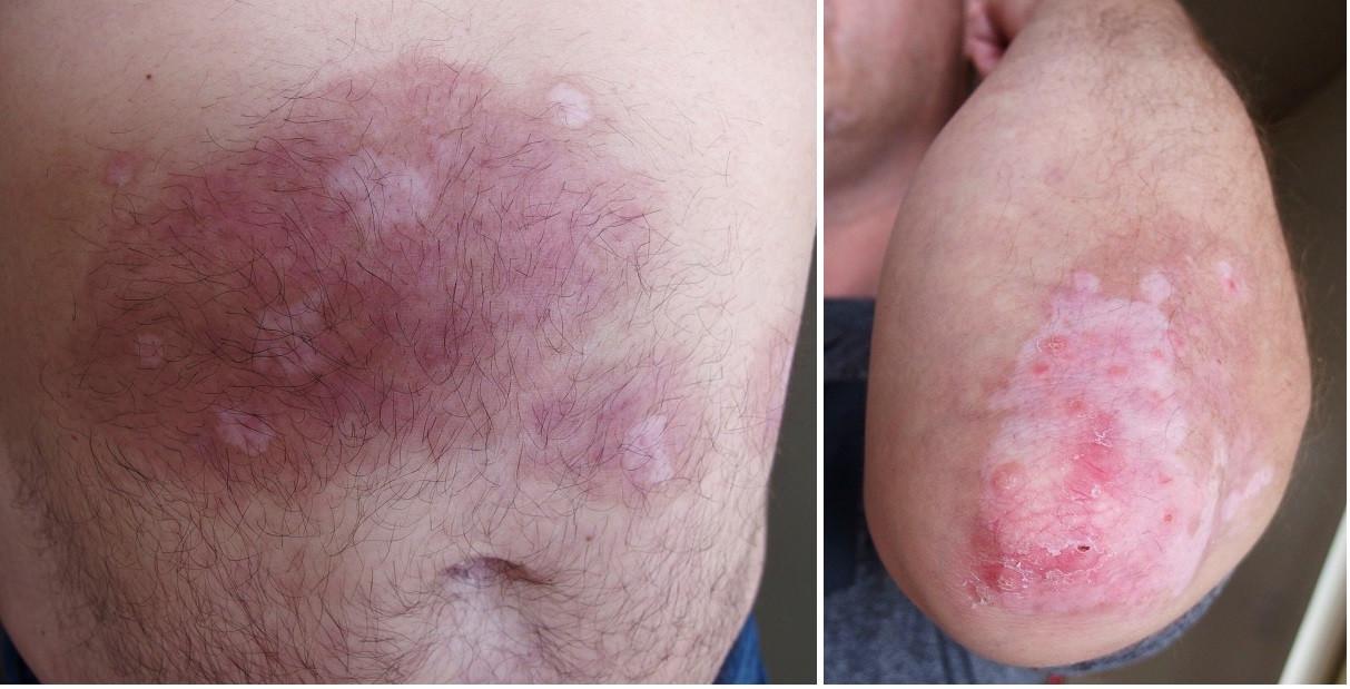 Psoriatická ložiska po 1 měsíci léčby kožní pěnou