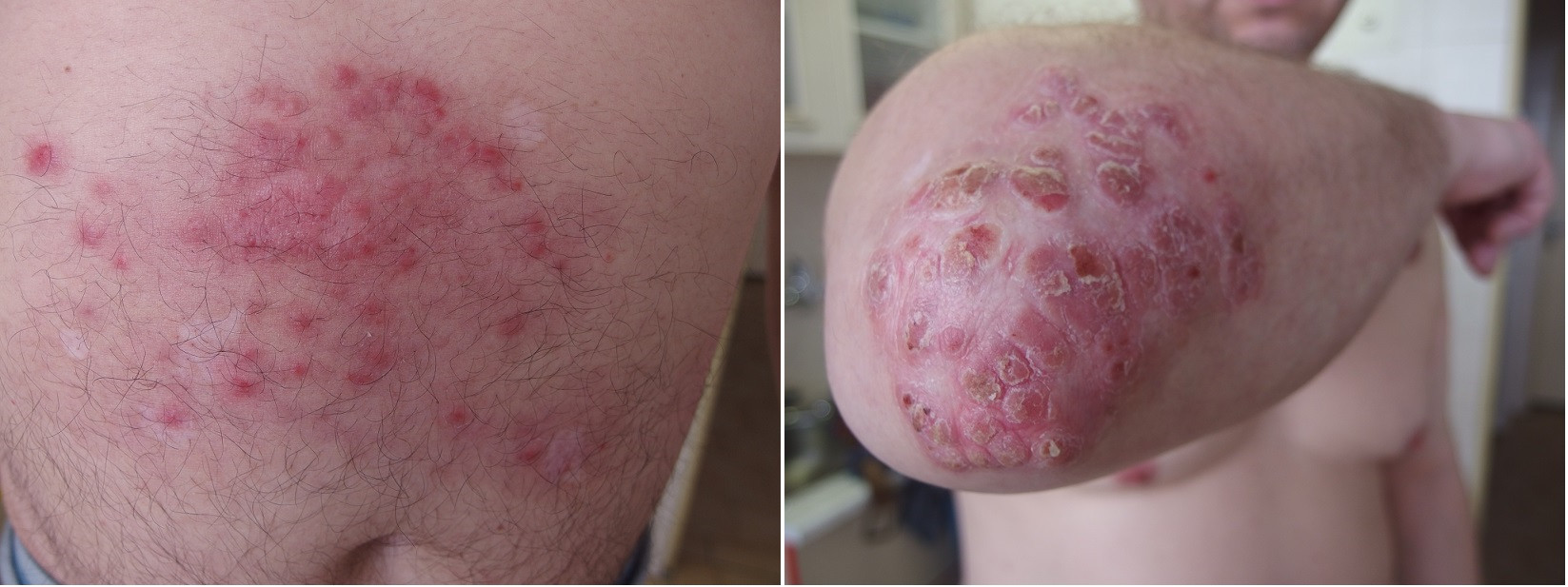 Psoriatická ložiska poté, co pacient neměl dostatek pěny